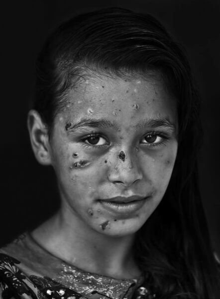 Young girl injured by Israeli fire inspires calls for freedom from Israeli oppression
