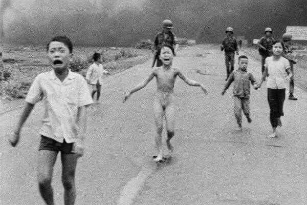 Vietnamese children burned by Napalm from American fighter jets
